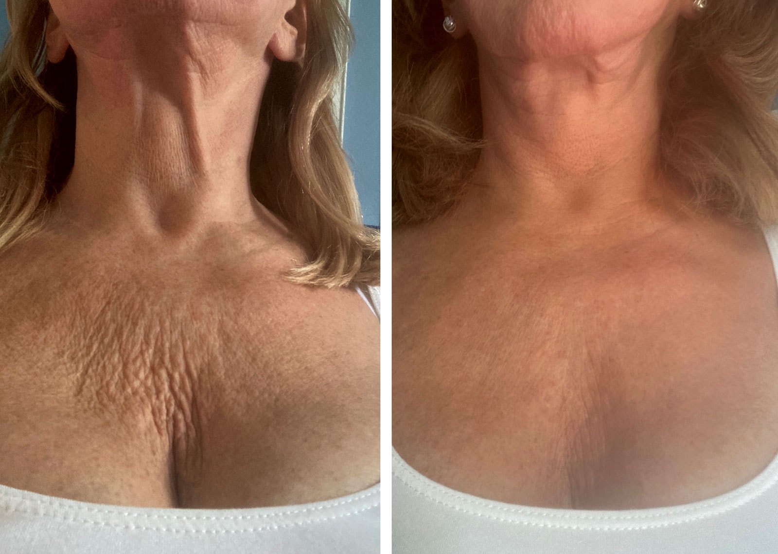 Ultherapy before and after ches