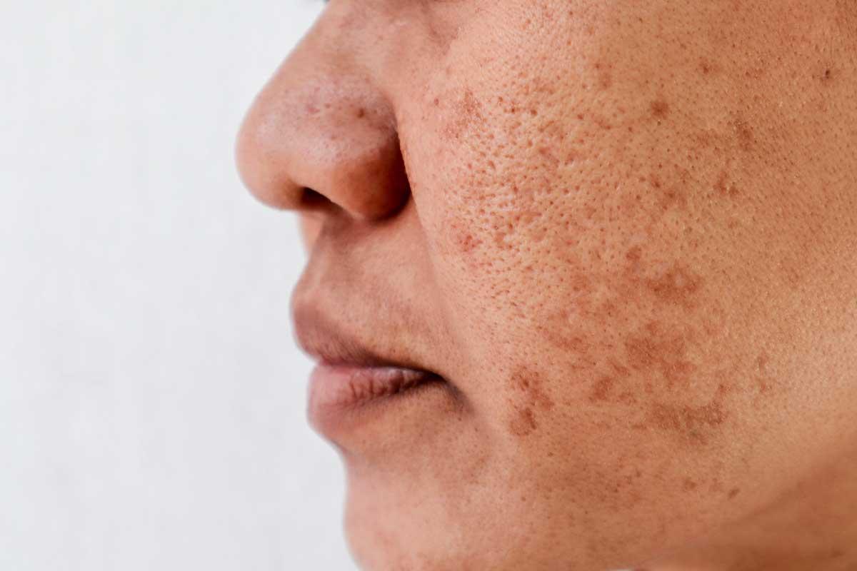 Top 10 Treatments for Sun-Damaged Skin